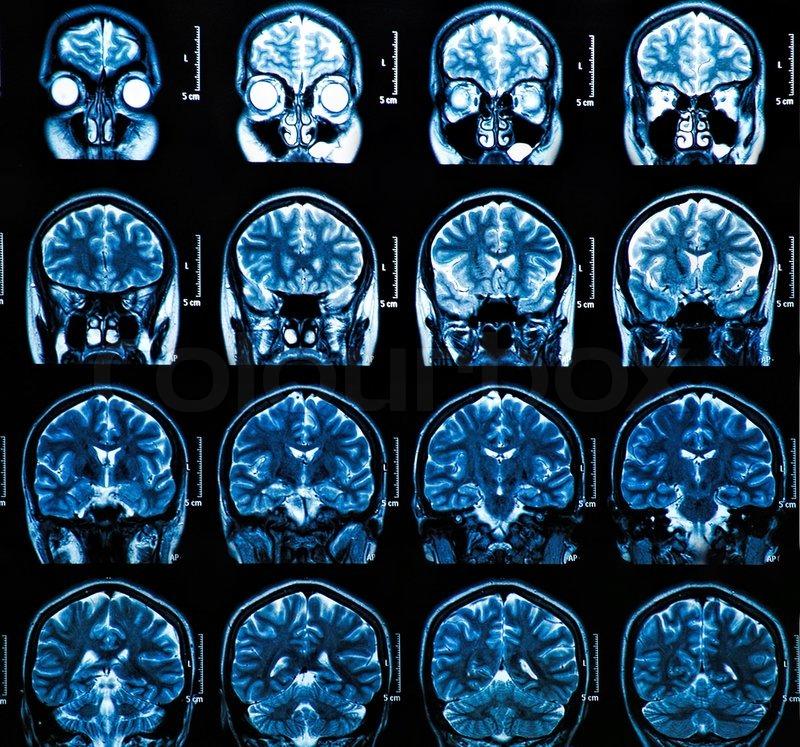 Une équipe de chercheurs de la Colorado University reçoit 11 millions de dollars pour élucider les mystères du cerveau des adolescents