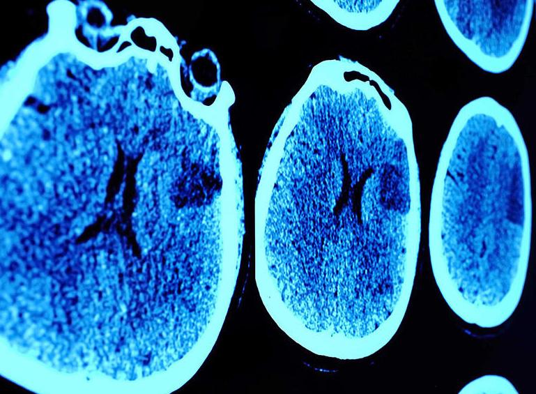 L'IA pour le diagnostic médical : un marché en croissance exponentielle mais des doutes qui restent à lever.